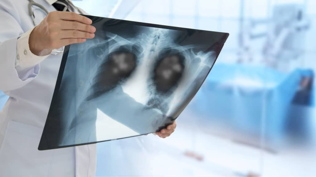 Low-dose CT scan