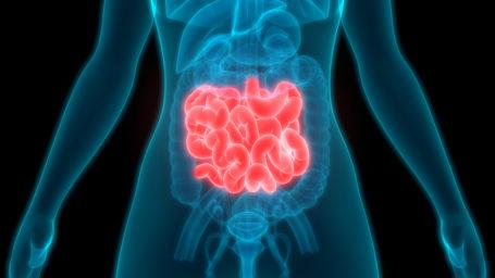 Small Intestine Cancer