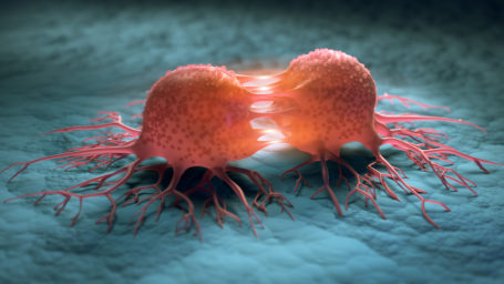 Defining molecular pathways leading to therapeutic resistance and tumor recurrence