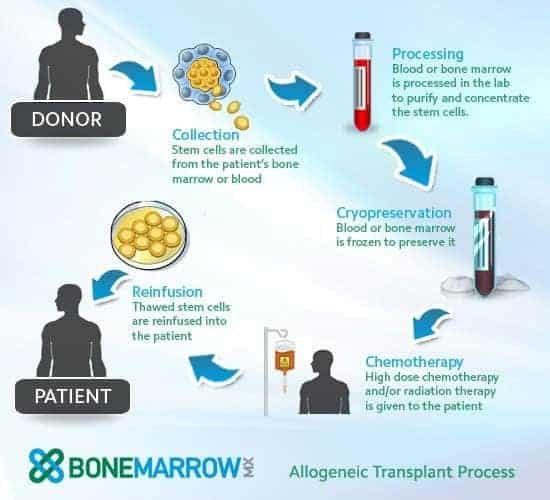 Allogeneic Stem Cell Transplantation