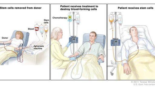 Stem Cell Transplants
