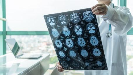Brain Cancer brain scans.