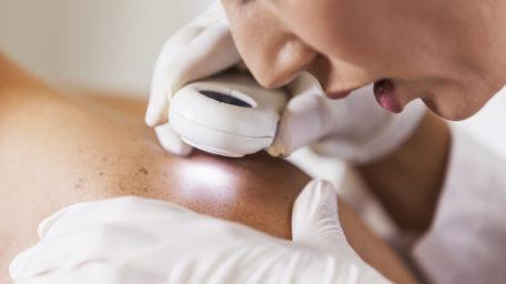 Skin Cancer Exam